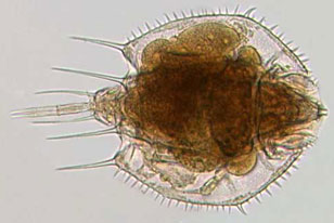micrograph of the rotifer Macrochaetus